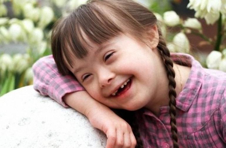 Opinión Un cambio de mirada hacia las personas con Síndrome de Down